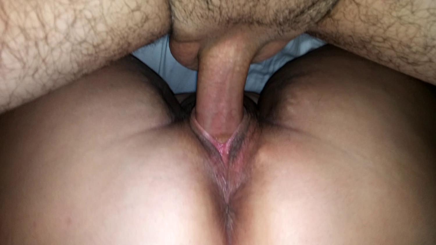 Peeing during anal tube