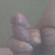 Surg95838